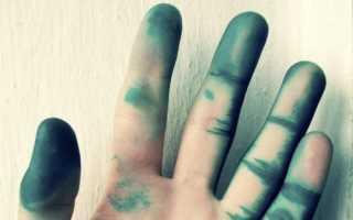 Как отмыть зеленку с кожи рук, тела в домашних условиях